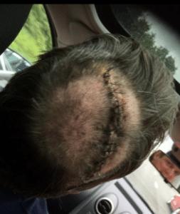 Andy's brain surgery scar2